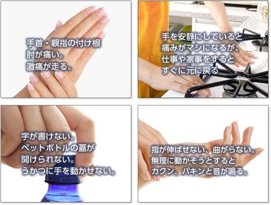腱鞘炎 症状
