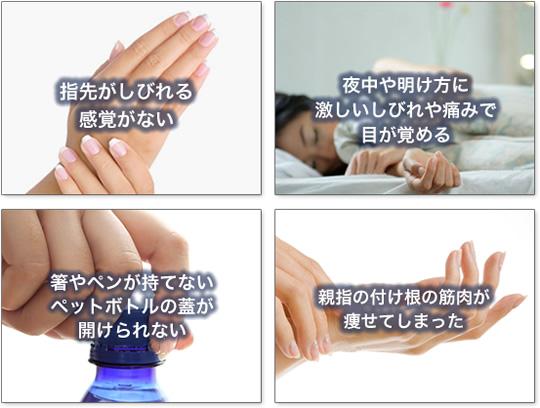 手根管症候群 症状