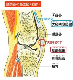 ジャンパー膝 症状 箇所