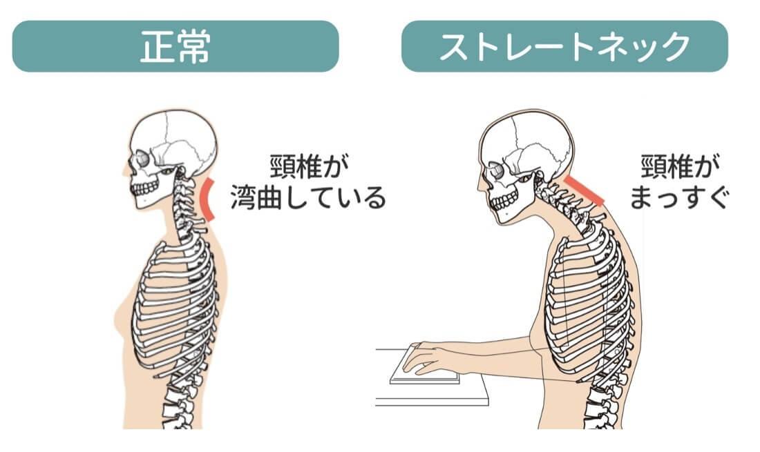 正常な首とストレートネックの違い